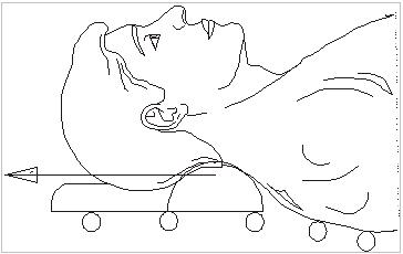 Вытяжение шейного отдела на кушетке